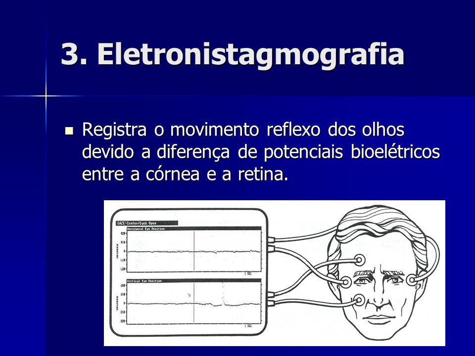 3. Eletronistagmografia Registra o movimento reflexo dos olhos devido a diferença de potenciais bioelétricos entre a córnea e a retina. Registra o mov
