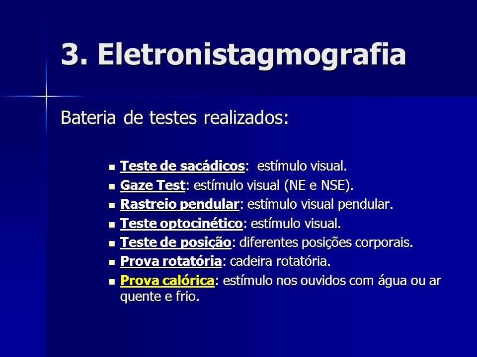 3. Eletronistagmografia Bateria de testes realizados: Teste de sacádicos: estímulo visual. Teste de sacádicos: estímulo visual. Gaze Test: estímulo vi