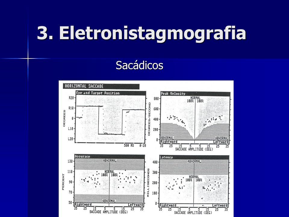 3. Eletronistagmografia Sacádicos