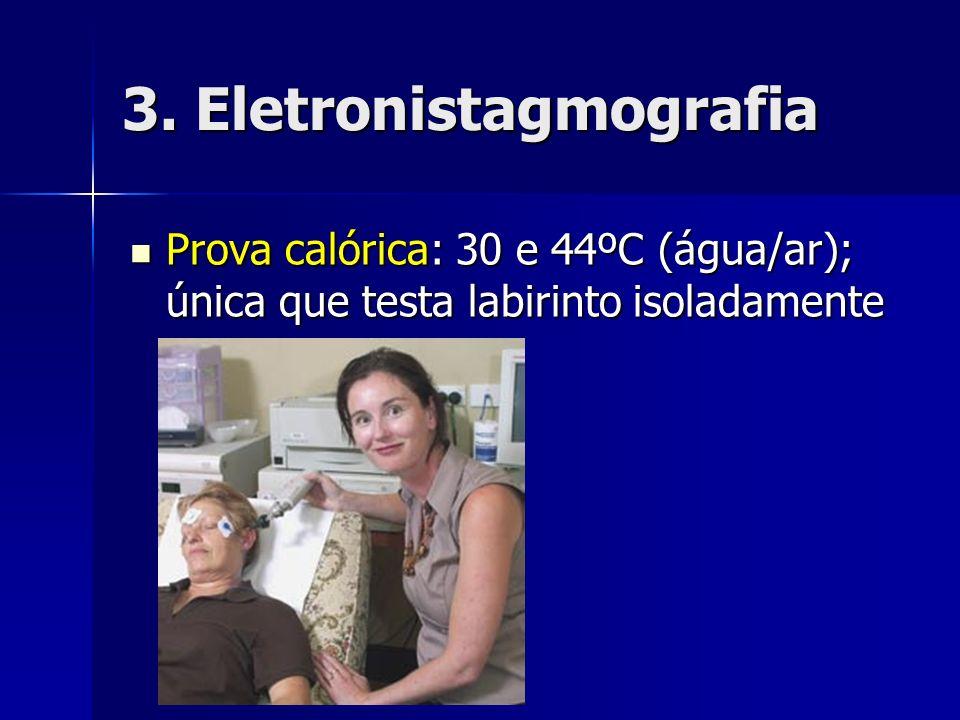 3. Eletronistagmografia Prova calórica: 30 e 44ºC (água/ar); única que testa labirinto isoladamente Prova calórica: 30 e 44ºC (água/ar); única que tes