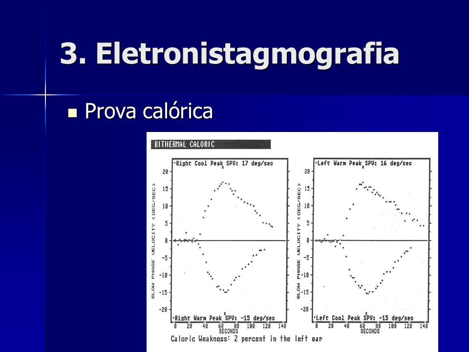 3. Eletronistagmografia Prova calórica Prova calórica