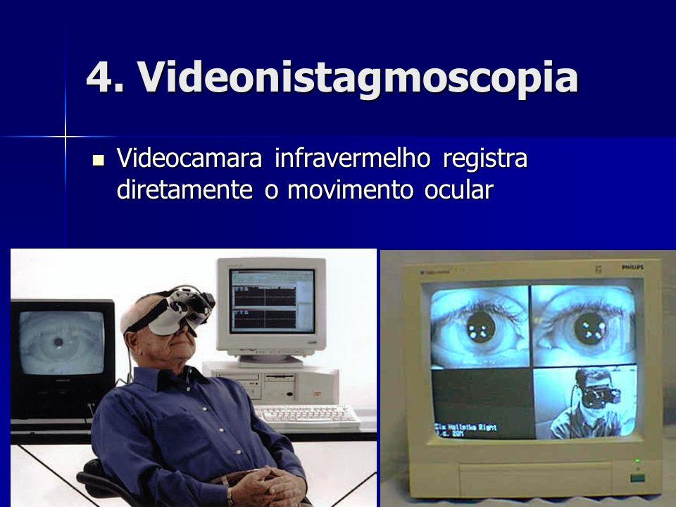 4. Videonistagmoscopia Videocamara infravermelho registra diretamente o movimento ocular Videocamara infravermelho registra diretamente o movimento oc