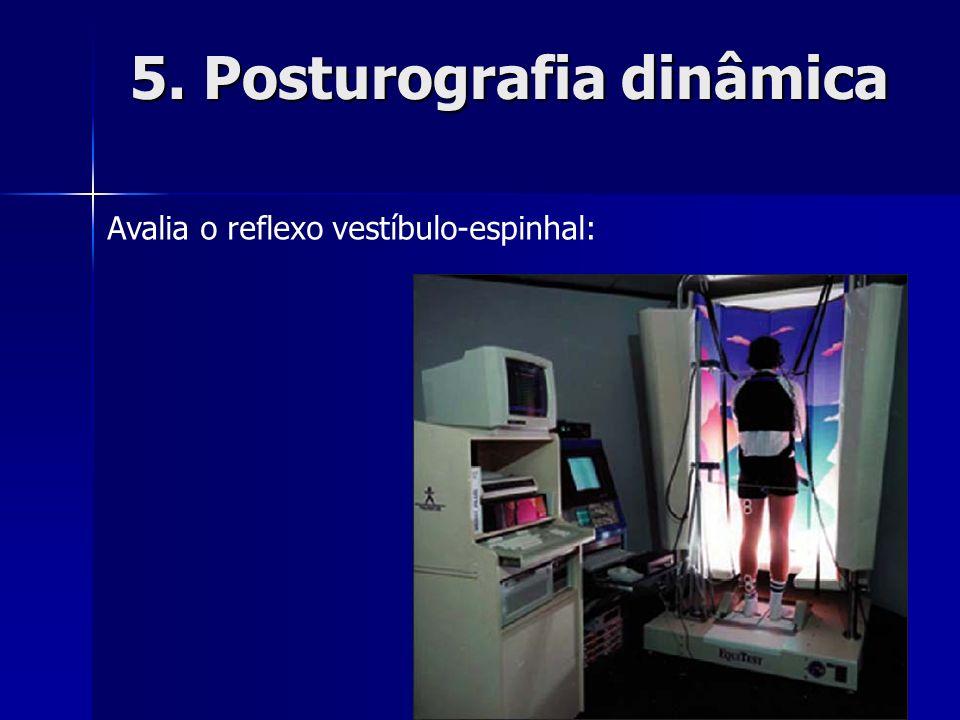 5. Posturografia dinâmica Avalia o reflexo vestíbulo-espinhal: