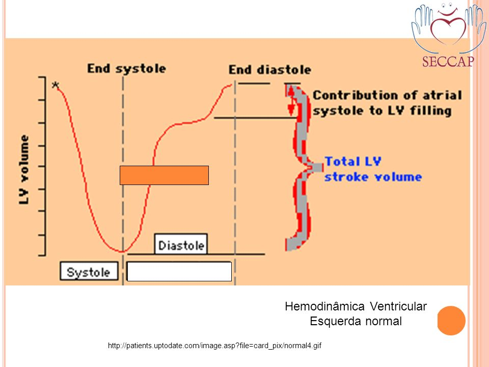 Hemodinâmica Ventricular Esquerda normal http://patients.uptodate.com/image.asp?file=card_pix/normal4.gif