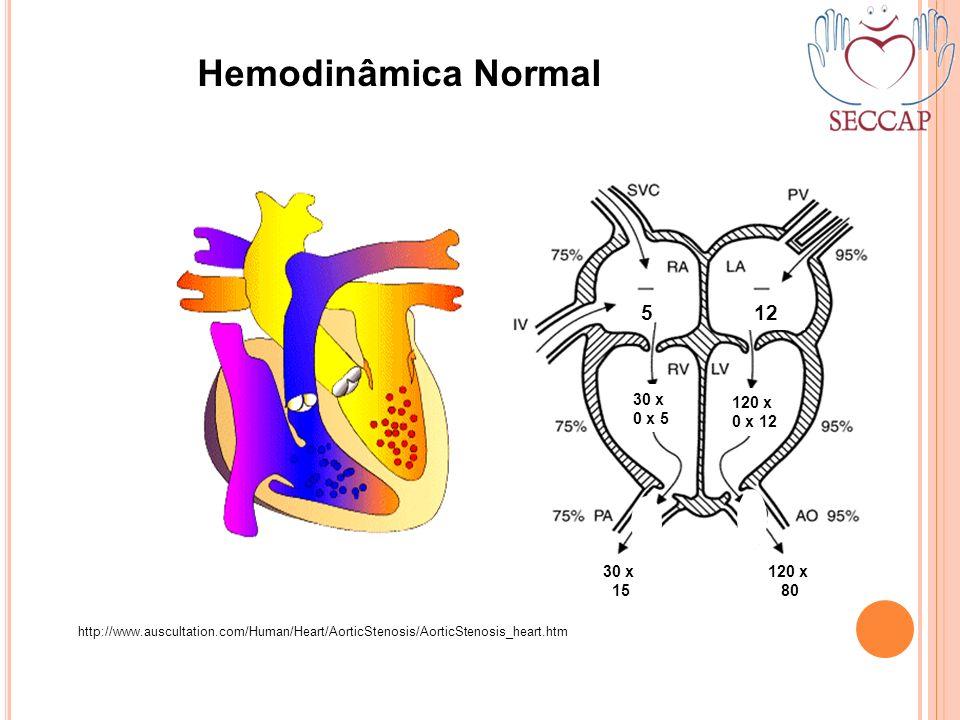 Hemodinâmica Normal http://www.auscultation.com/Human/Heart/AorticStenosis/AorticStenosis_heart.htm 5 30 x 0 x 5 120 x 0 x 12 12 30 x 15 120 x 80