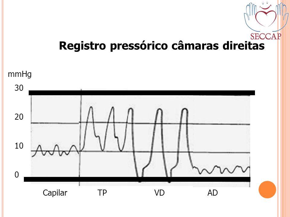 30 20 10 0 mmHg Capilar TP VD AD Registro pressórico câmaras direitas