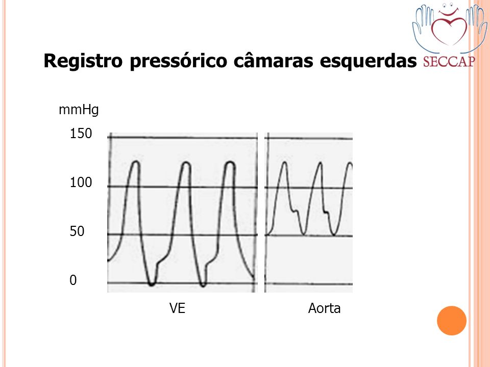 Registro pressórico câmaras esquerdas 150 100 50 0 mmHg VE Aorta