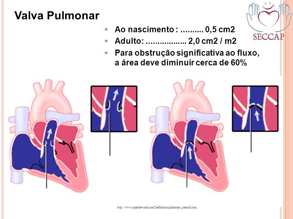 Valva Pulmonar http://www.rjmatthewsmd.com/Definitions/pulmonary_stenosis.htm Ao nascimento :.......... 0,5 cm2 Adulto:.................. 2,0 cm2 / m2
