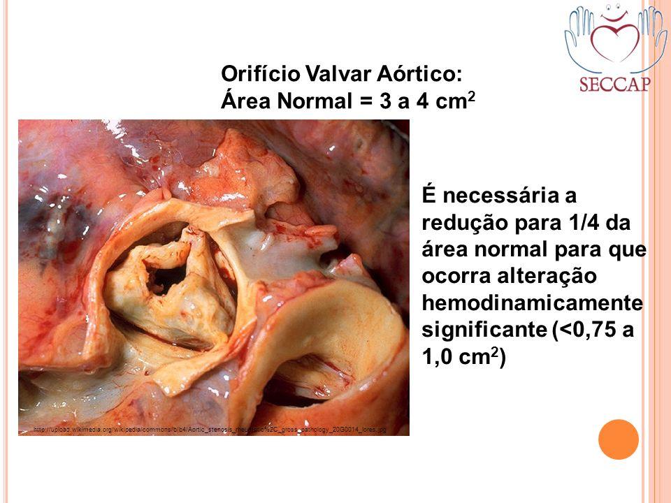 É necessária a redução para 1/4 da área normal para que ocorra alteração hemodinamicamente significante (<0,75 a 1,0 cm 2 ) Orifício Valvar Aórtico: Á