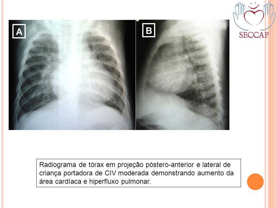 A B Radiograma de tórax em projeção póstero-anterior e lateral de criança portadora de CIV moderada demonstrando aumento da área cardíaca e hiperfluxo