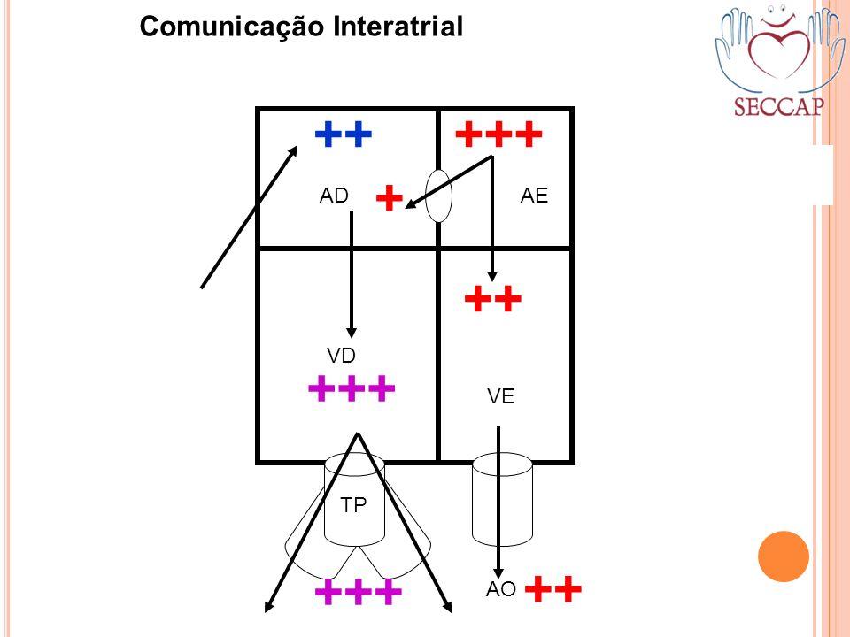 +++ + ++ TP AO ++ +++ ADAE VD VE Comunicação Interatrial ++ +++