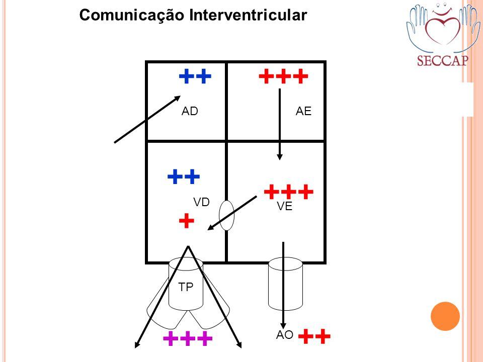 ++ +++ TP AO ++ +++ ADAE VD VE Comunicação Interventricular ++ +