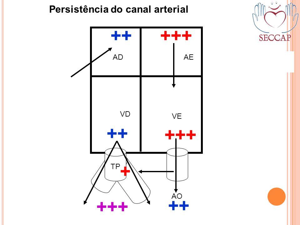 +++ TP AO ++ +++ ADAE VD VE Persistência do canal arterial ++ + +++ ++