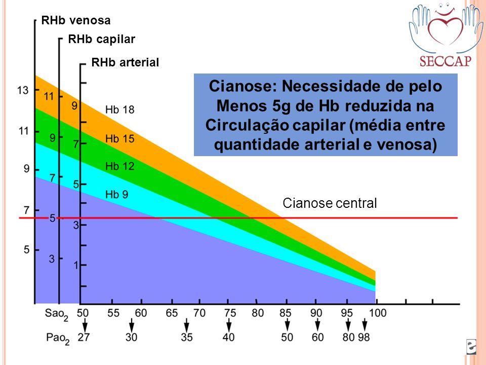 Cianose central RHb venosa RHb capilar RHb arterial Cianose: Necessidade de pelo Menos 5g de Hb reduzida na Circulação capilar (média entre quantidade