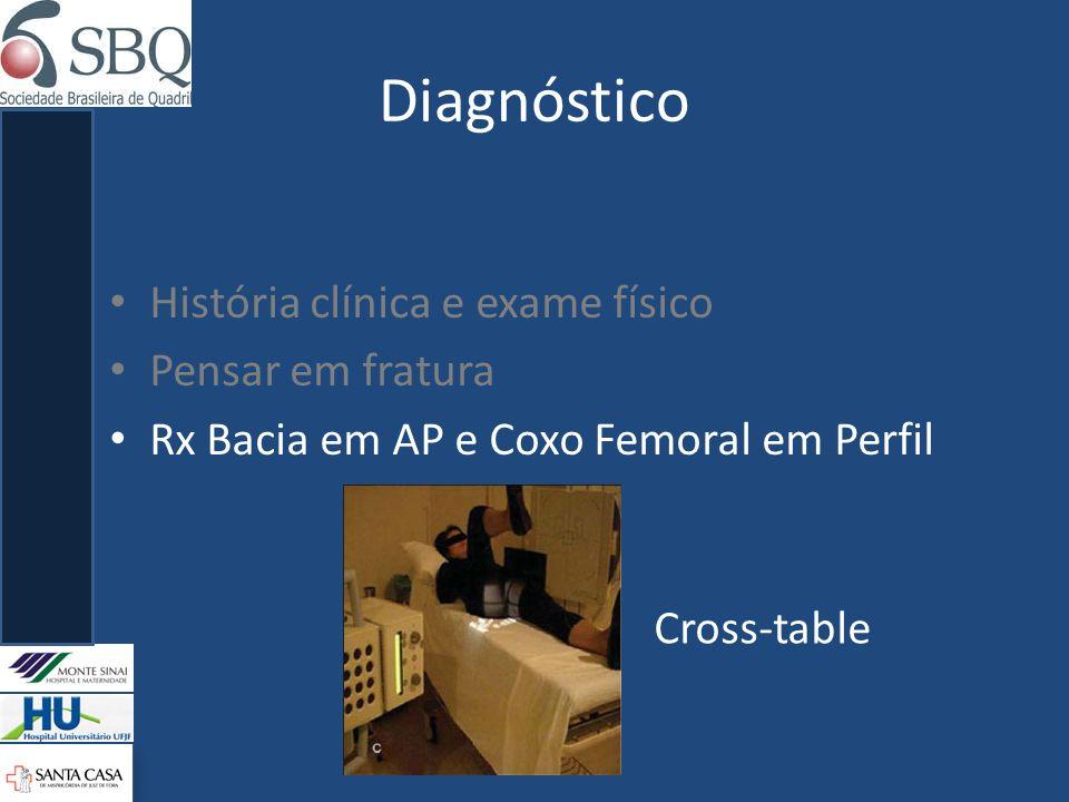 Diagnóstico História clínica e exame físico Pensar em fratura Rx Bacia em AP e Coxo Femoral em Perfil Cross-table