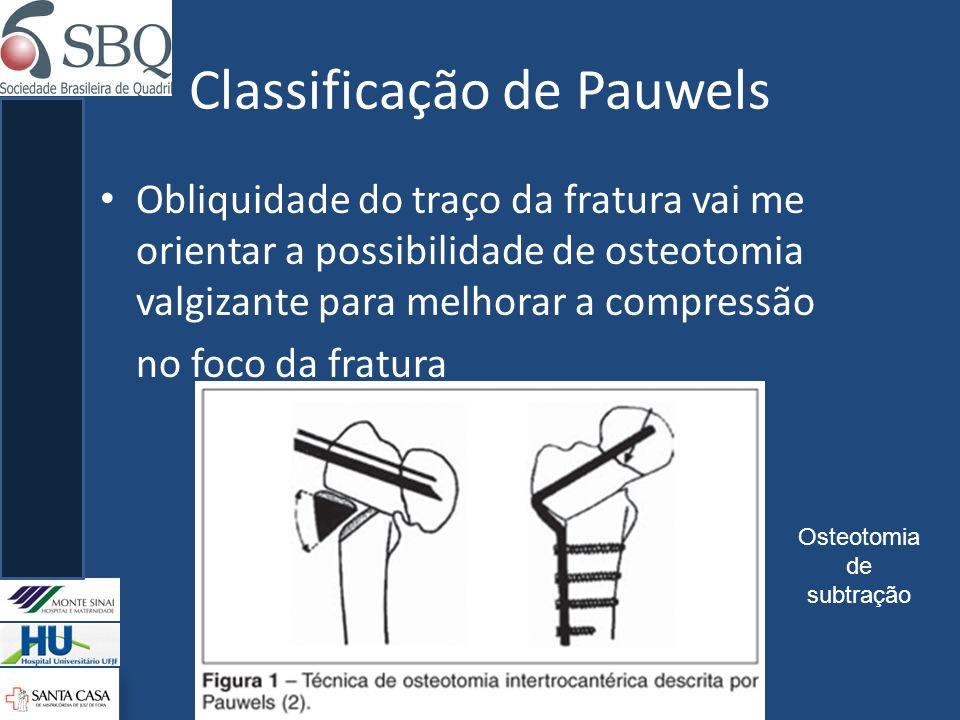 Classificação de Pauwels Obliquidade do traço da fratura vai me orientar a possibilidade de osteotomia valgizante para melhorar a compressão no foco d