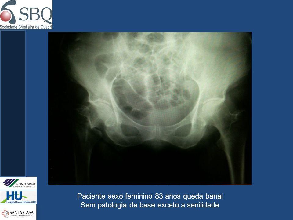 Paciente sexo feminino 83 anos queda banal Sem patologia de base exceto a senilidade
