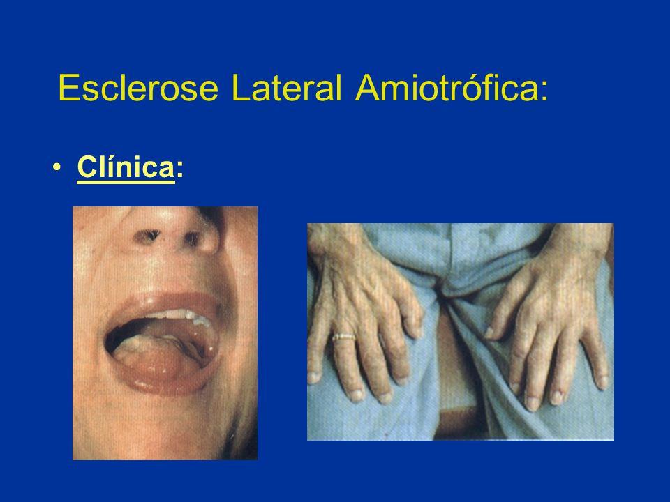 Esclerose Lateral Amiotrófica: Clínica:
