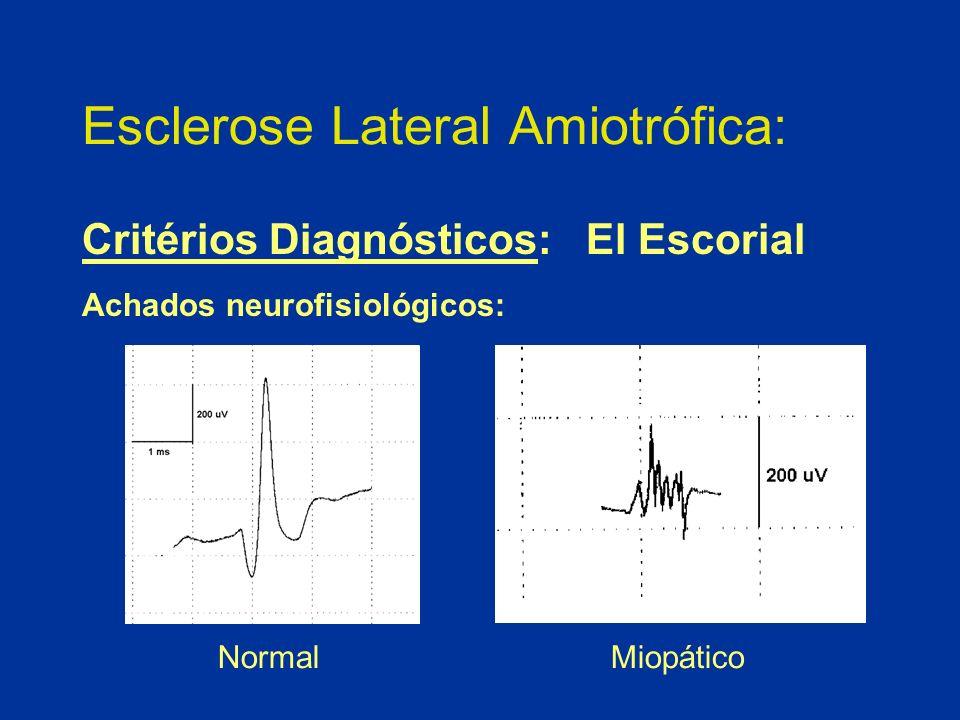 Esclerose Lateral Amiotrófica: Critérios Diagnósticos: El Escorial Achados neurofisiológicos: Normal Miopático