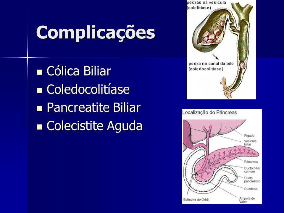 Tratamento Colecistectomia convencional, ou aberta.