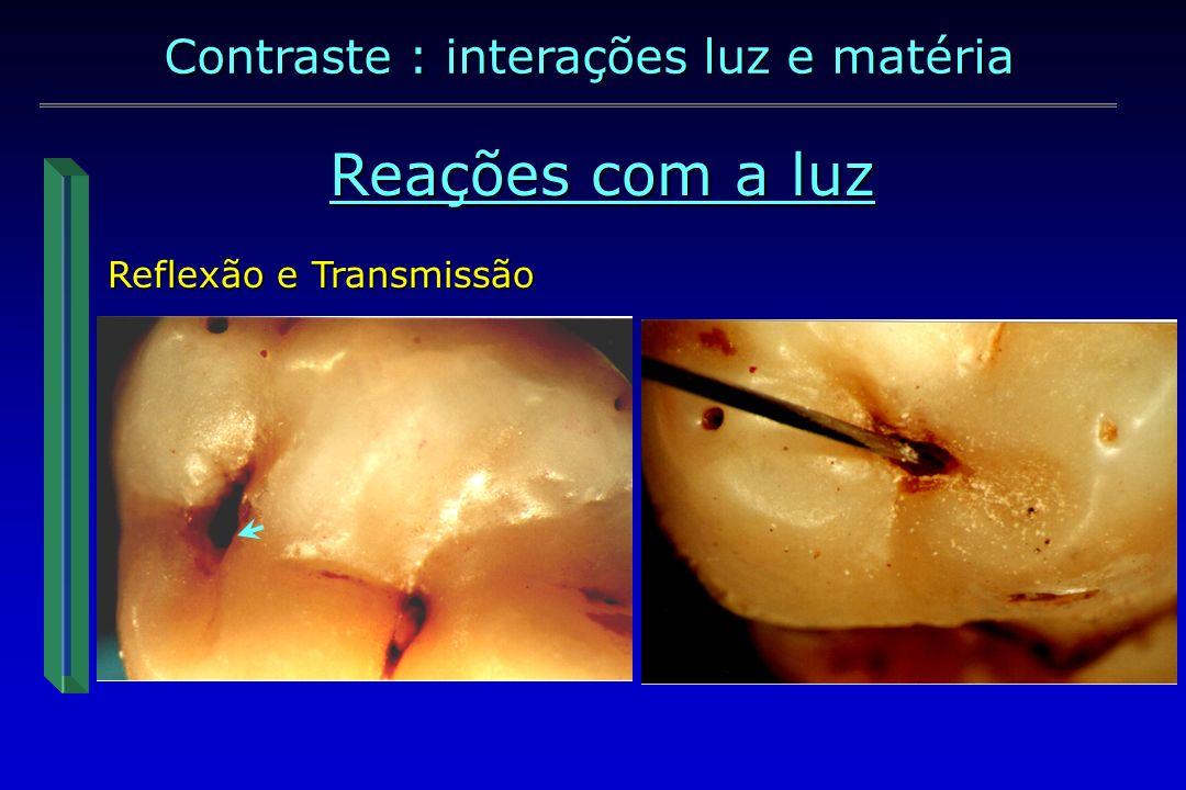 Reações com a luz Na face oclusal Contraste : interações luz e matéria