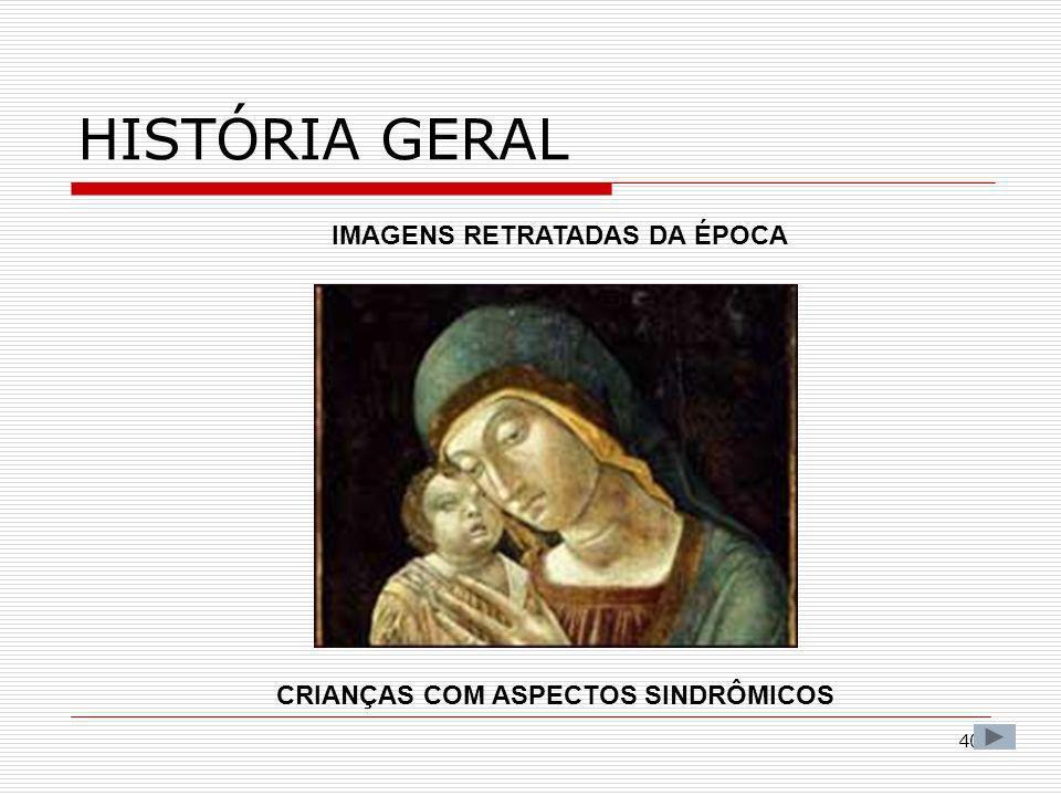 40 HISTÓRIA GERAL IMAGENS RETRATADAS DA ÉPOCA CRIANÇAS COM ASPECTOS SINDRÔMICOS