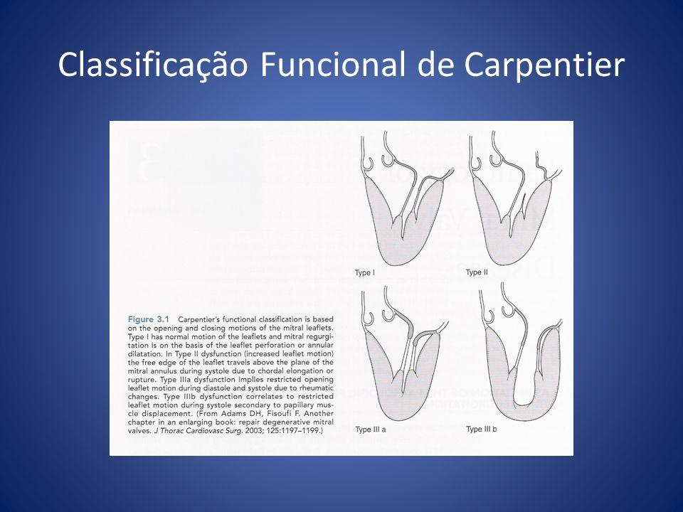 Princípios Básicos do Reparo Identificar a anormalidade causadora do vazamento Adequada coaptação das cúspides Relação área das cúspides / orifício valvar = 2:1 Suporte anular