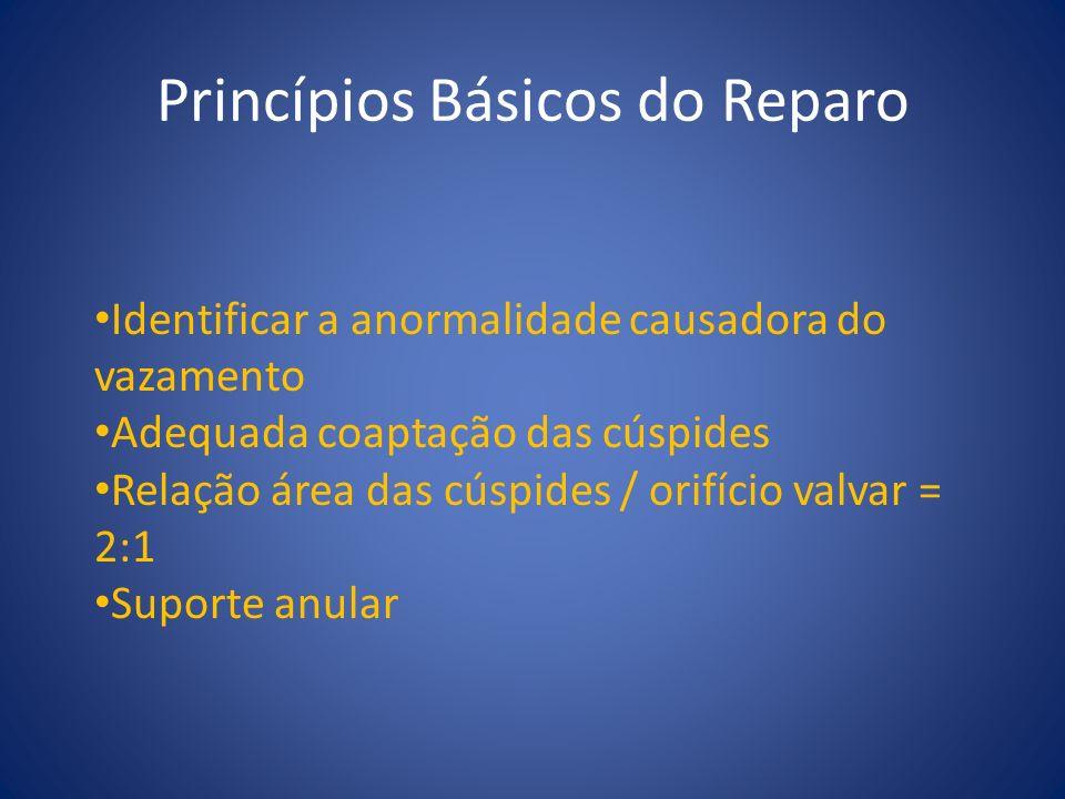 Princípios Básicos do Reparo Identificar a anormalidade causadora do vazamento Adequada coaptação das cúspides Relação área das cúspides / orifício va