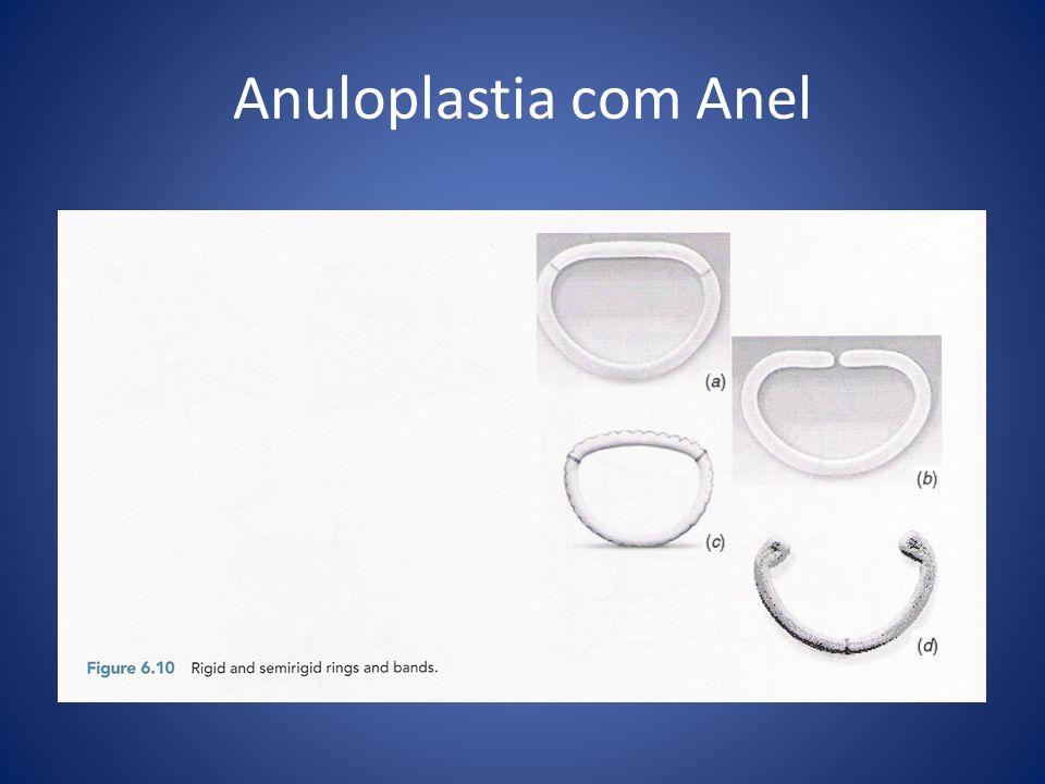 Anuloplastia com Anel