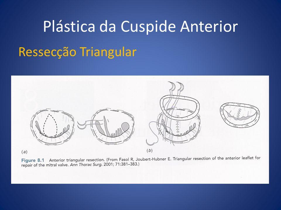 Plástica da Cuspide Anterior Ressecção Triangular