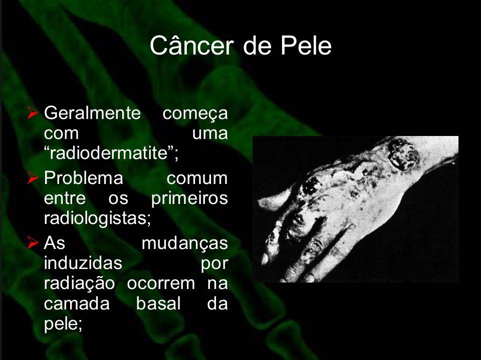 Câncer de Pele Geralmente começa com uma radiodermatite; Problema comum entre os primeiros radiologistas; As mudanças induzidas por radiação ocorrem n