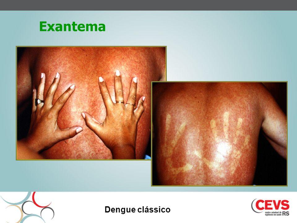 Exantema Dengue clássico