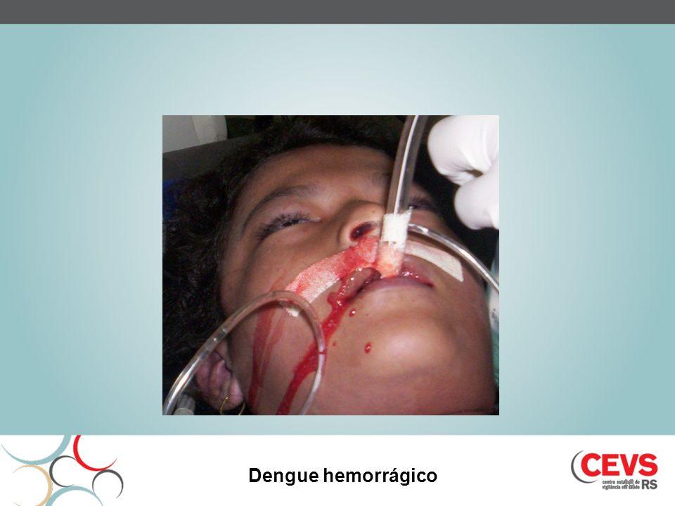 18 Dengue hemorrágico