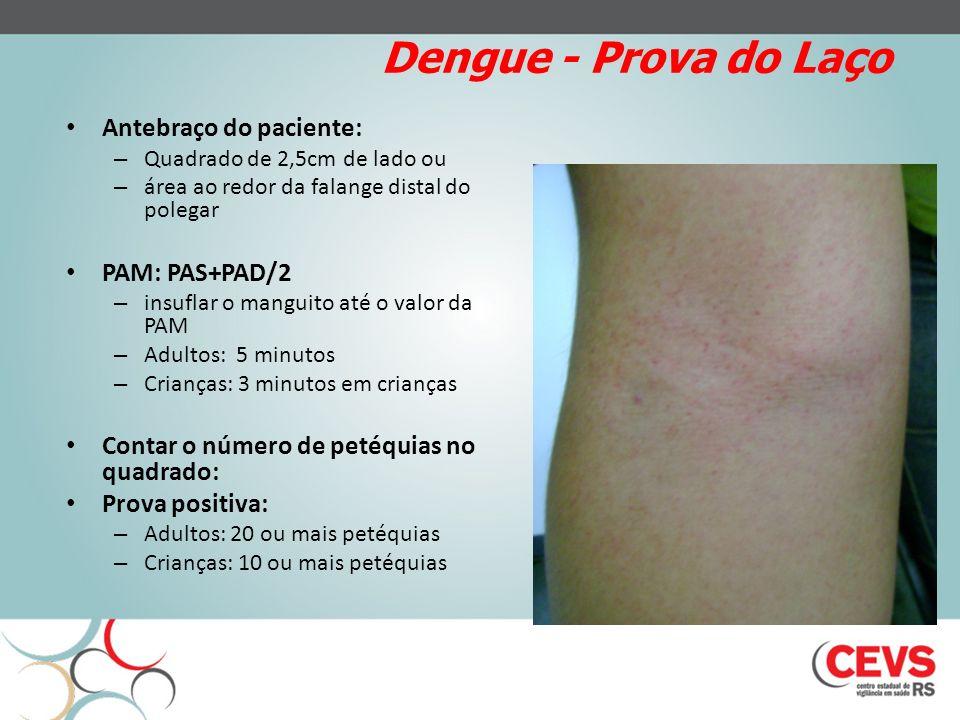 Dengue - Prova do Laço Antebraço do paciente: – Quadrado de 2,5cm de lado ou – área ao redor da falange distal do polegar PAM: PAS+PAD/2 – insuflar o manguito até o valor da PAM – Adultos: 5 minutos – Crianças: 3 minutos em crianças Contar o número de petéquias no quadrado: Prova positiva: – Adultos: 20 ou mais petéquias – Crianças: 10 ou mais petéquias