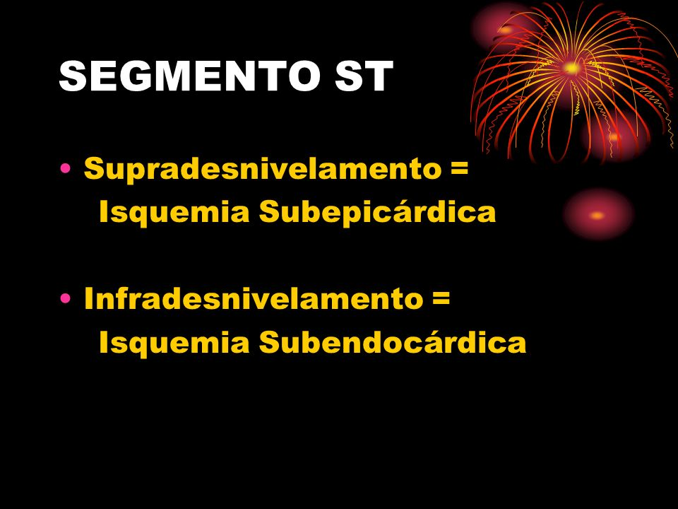 SEGMENTO ST Supradesnivelamento = Isquemia Subepicárdica Infradesnivelamento = Isquemia Subendocárdica