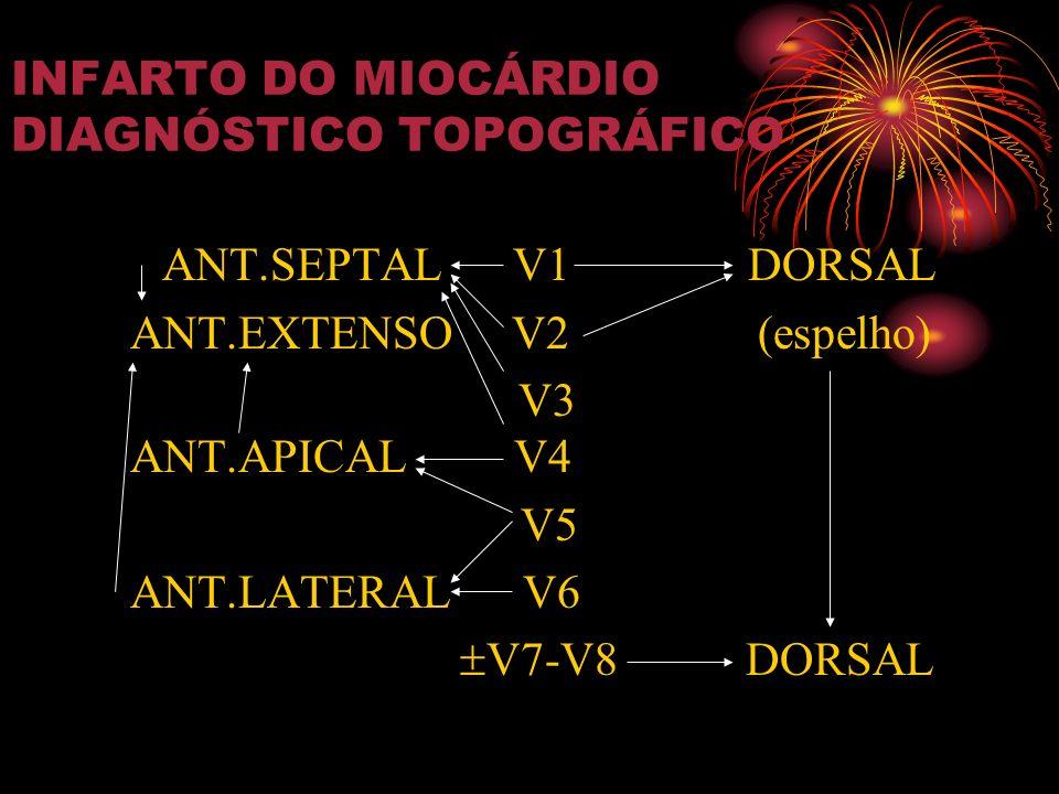 INFARTO DO MIOCÁRDIO DIAGNÓSTICO TOPOGRÁFICO ANT.SEPTAL V1 DORSAL ANT.EXTENSO V2 (espelho) V3 ANT.APICAL V4 V5 ANT.LATERAL V6 V7-V8 DORSAL