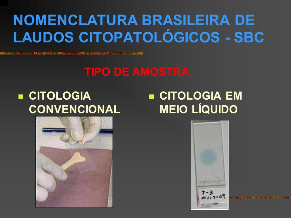 CÉLULAS EPITELIAIS ATÍPICAS (SIGNIFICADO INDETERMINADO) CÉLULAS GLANDULARES SOE - POSSÍVELMENTE NÃO NEOPLÁSICO - POSSÍVELMENTE NEOPLÁSICO Células glandulares atípicas de significado indeterminado, possivelmente não neoplásico