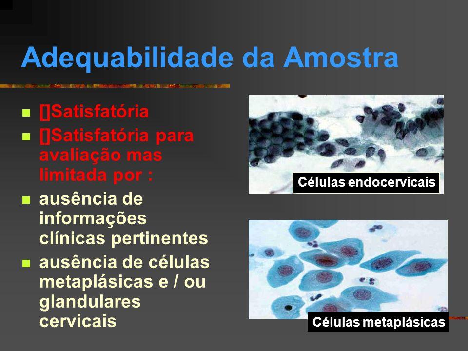 Adequabilidade da Amostra []Satisfatória para avaliação mas limitada, (50 a 75% do esfregaço obscurecido) por: artefatos de dessecamento superposição celular exsudato leucocitário hemácias outras causas (especificar nas observações)