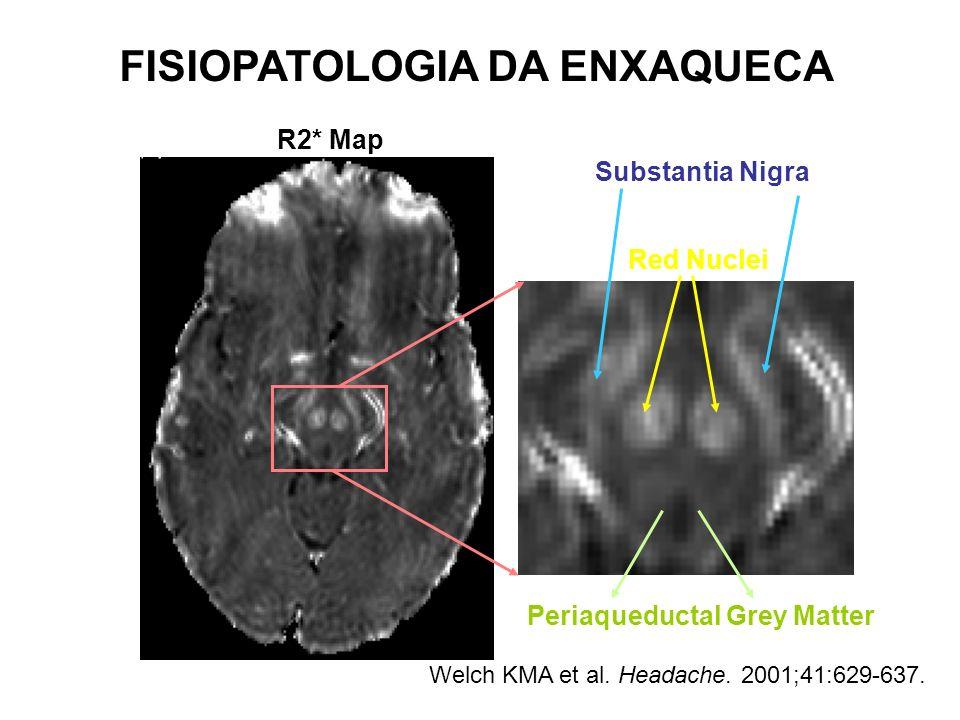Red Nuclei Substantia Nigra Periaqueductal Grey Matter R2* Map Welch KMA et al. Headache. 2001;41:629-637. FISIOPATOLOGIA DA ENXAQUECA