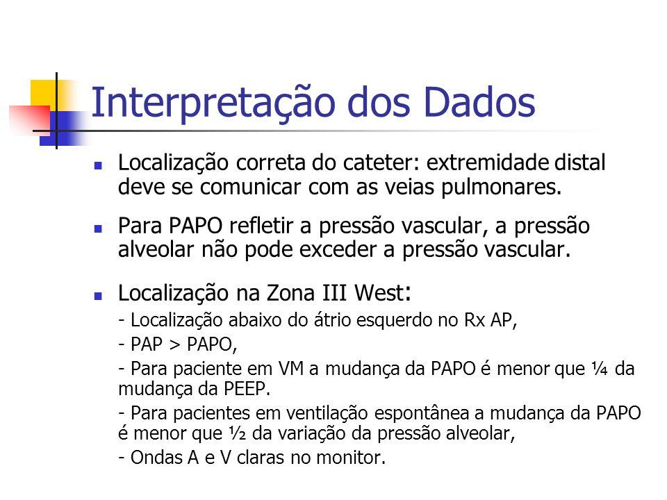 Interpretação dos Dados Localização correta do cateter: extremidade distal deve se comunicar com as veias pulmonares. Para PAPO refletir a pressão vas