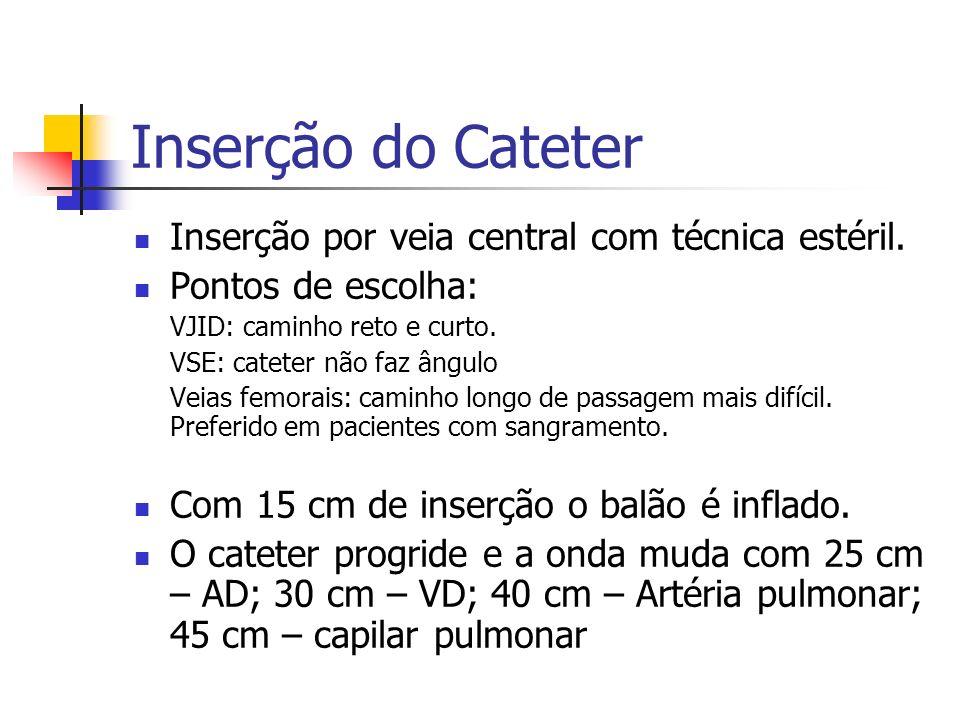 Inserção do Cateter Inserção por veia central com técnica estéril. Pontos de escolha: VJID: caminho reto e curto. VSE: cateter não faz ângulo Veias fe