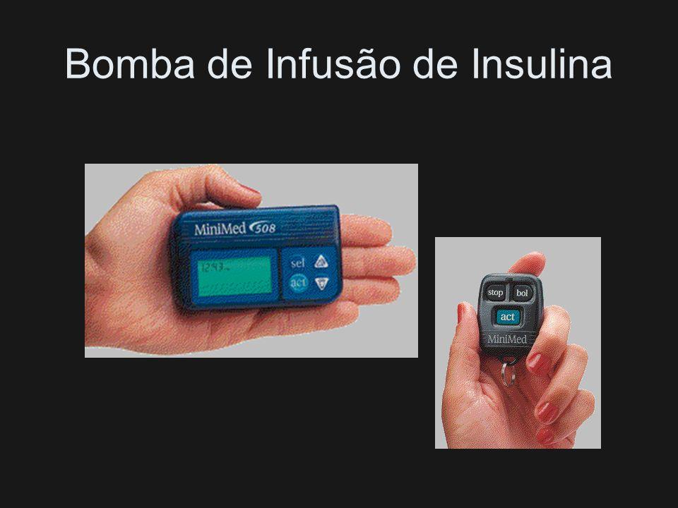 Insulina Rápida Antes do Café e Jantar e NPH ou Lenta Antes do Café e Jantar (2/3 e 1/3)