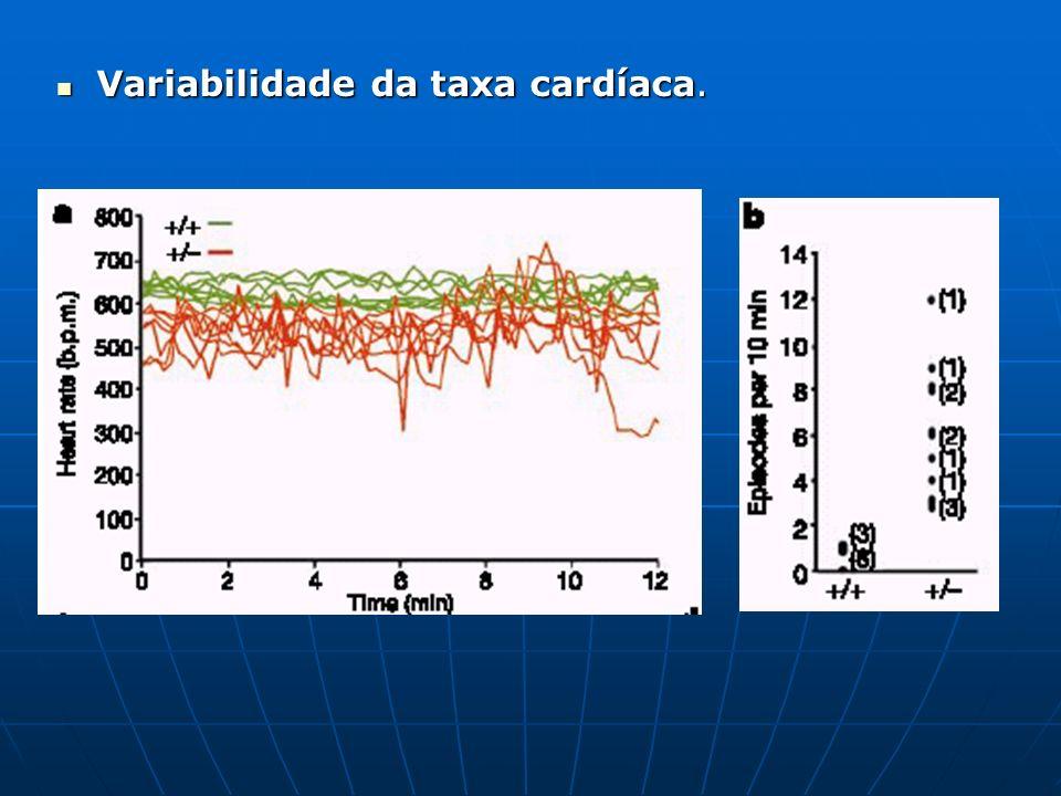 EEG de camundongos Ank+/- comparado ao controle. EEG de camundongos Ank+/- comparado ao controle.