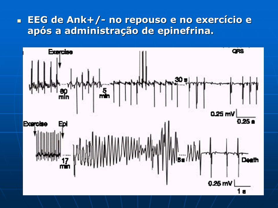 EEG de Ank+/- no repouso e no exercício e após a administração de epinefrina. EEG de Ank+/- no repouso e no exercício e após a administração de epinef
