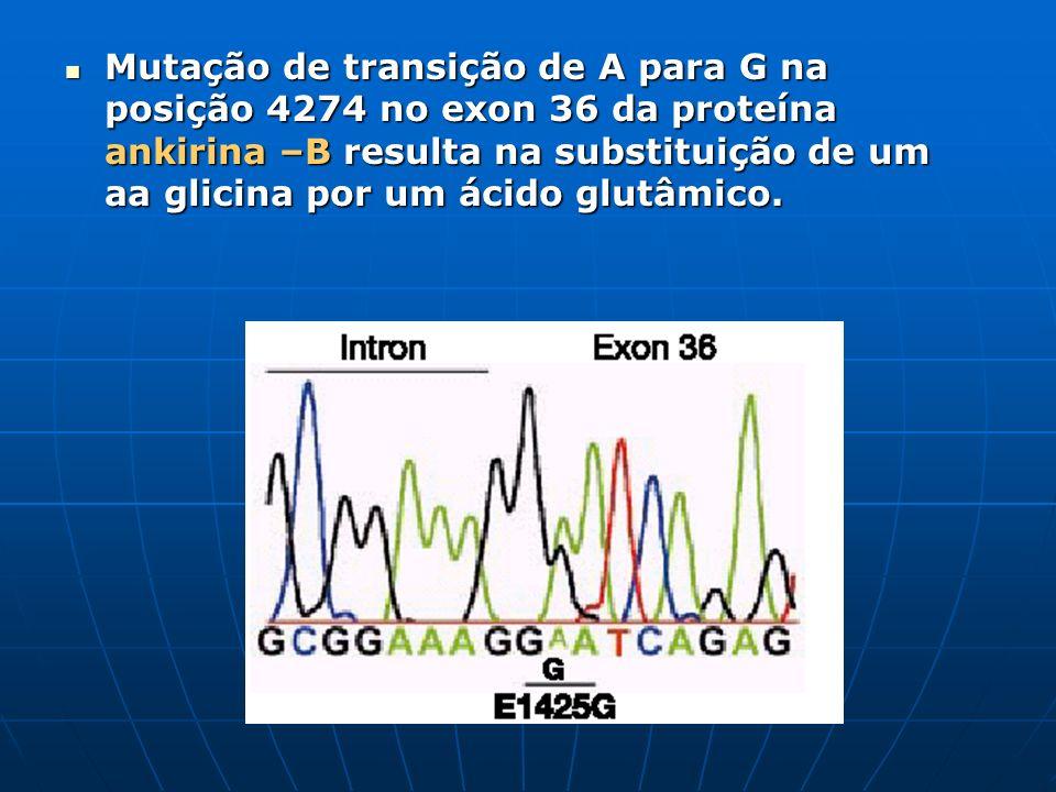 Mutação de transição de A para G na posição 4274 no exon 36 da proteína ankirina –B resulta na substituição de um aa glicina por um ácido glutâmico. M