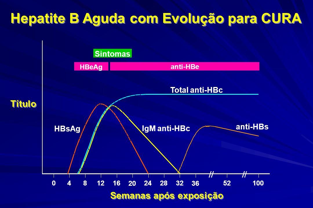 Hepatite B Aguda com Evolução para CURA Semanas após exposição Título Sintomas HBeAg anti-HBe Total anti-HBc IgM anti-HBc anti-HBs HBsAg 0481216 20 24