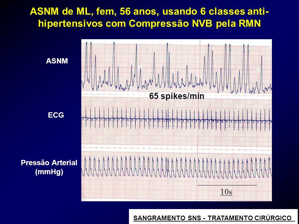 65 spikes/min 10s Pressão Arterial (mmHg) ASNM ECG ASNM de ML, fem, 56 anos, usando 6 classes anti- hipertensivos com Compressão NVB pela RMN SANGRAME