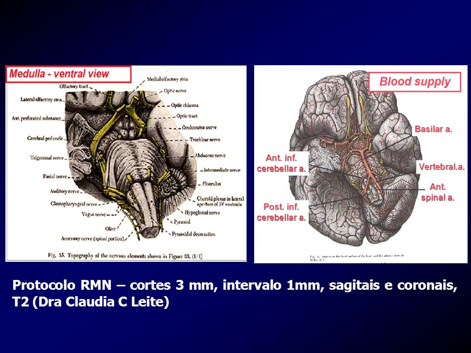 Protocolo RMN – cortes 3 mm, intervalo 1mm, sagitais e coronais, T2 (Dra Claudia C Leite)