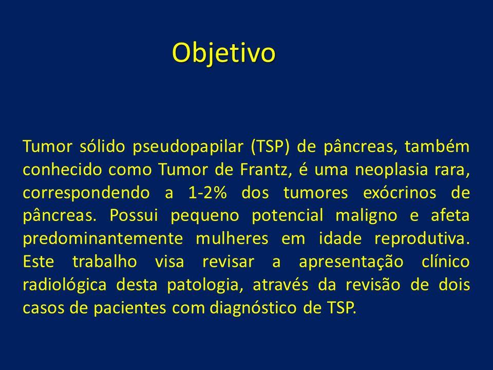 Objetivo Tumor sólido pseudopapilar (TSP) de pâncreas, também conhecido como Tumor de Frantz, é uma neoplasia rara, correspondendo a 1-2% dos tumores