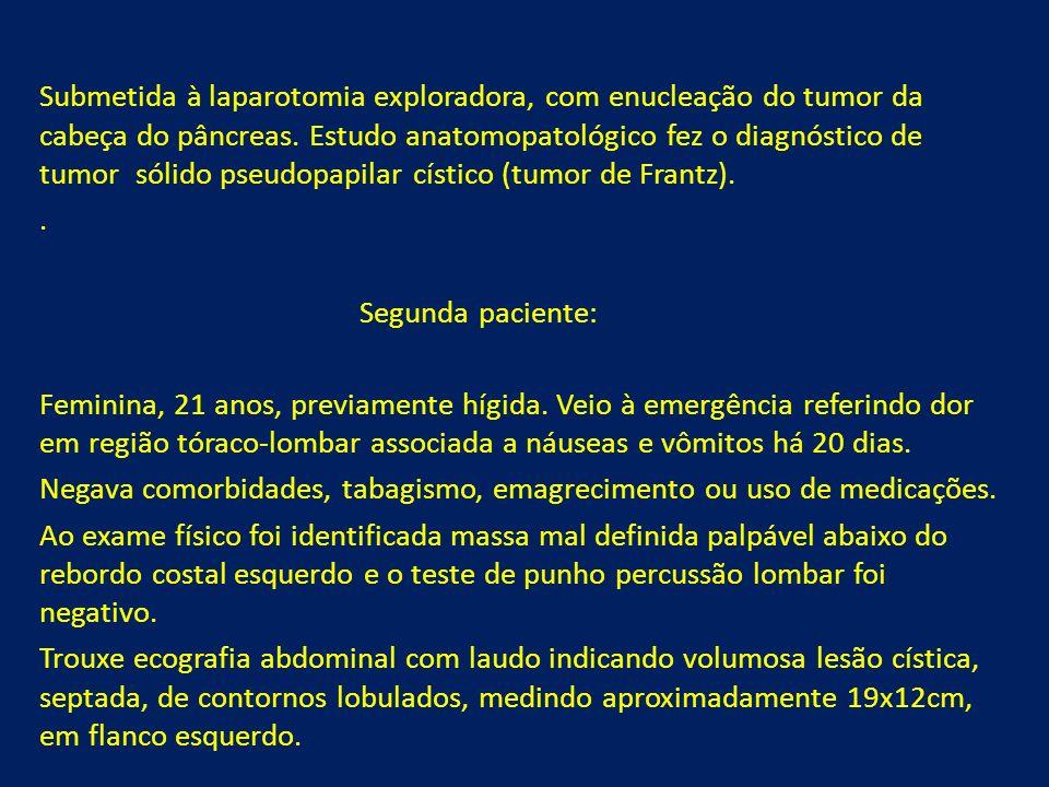 Submetida à laparotomia exploradora, com enucleação do tumor da cabeça do pâncreas. Estudo anatomopatológico fez o diagnóstico de tumor sólido pseudop